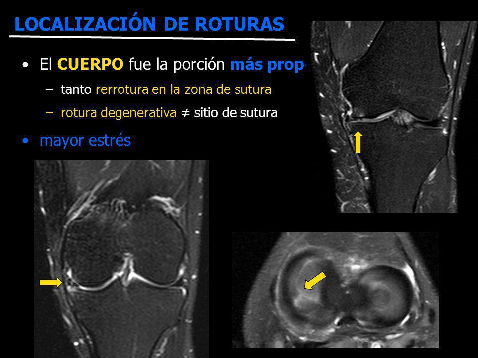 LOCALIZACIÓN DE ROTURAS R F El CUERPO fue la porción más propensa al fracaso –tanto rerrotura en la zona de sutura –rotura degenerativa sitio de sutur
