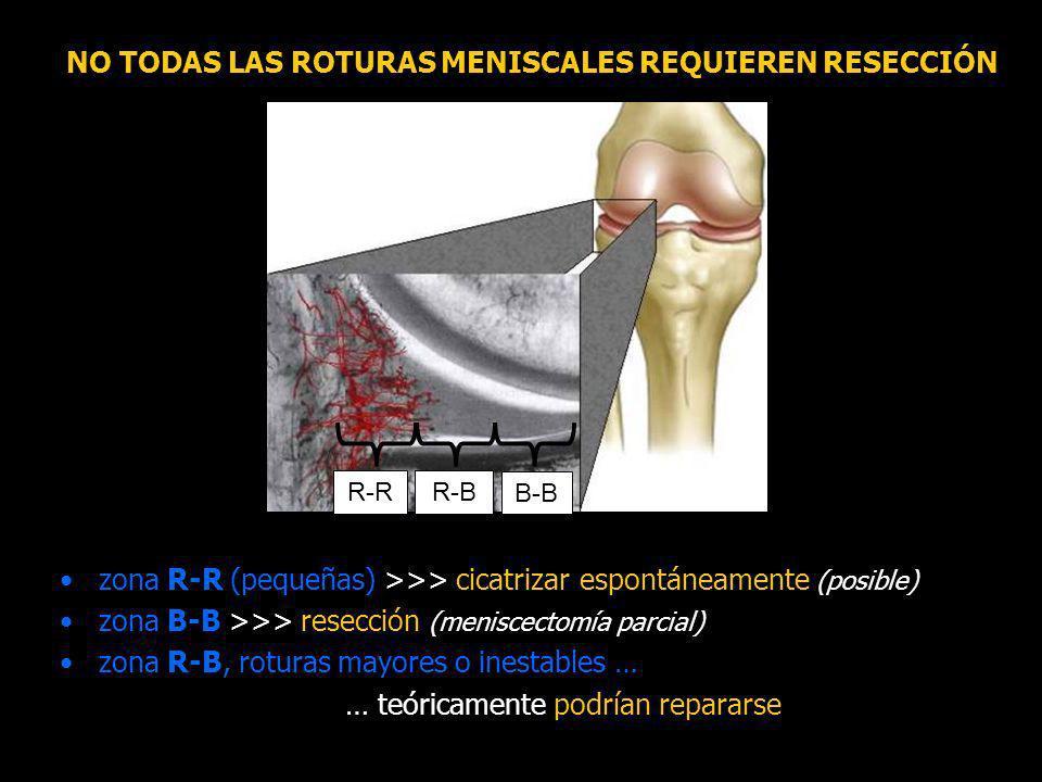 NO TODAS LAS ROTURAS MENISCALES REQUIEREN RESECCIÓN zona R-R (pequeñas) >>> cicatrizar espontáneamente (posible) zona B-B >>> resección (meniscectomía parcial) zona R-B, roturas mayores o inestables … … teóricamente podrían repararse R-RR-B B-B