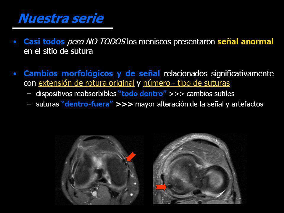Nuestra serie Casi todos pero NO TODOS los meniscos presentaron señal anormal en el sitio de sutura Cambios morfológicos y de señal relacionados signi