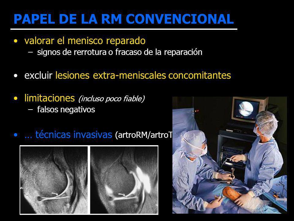 valorar el menisco reparado –signos de rerrotura o fracaso de la reparación excluir lesiones extra-meniscales concomitantes limitaciones (incluso poco
