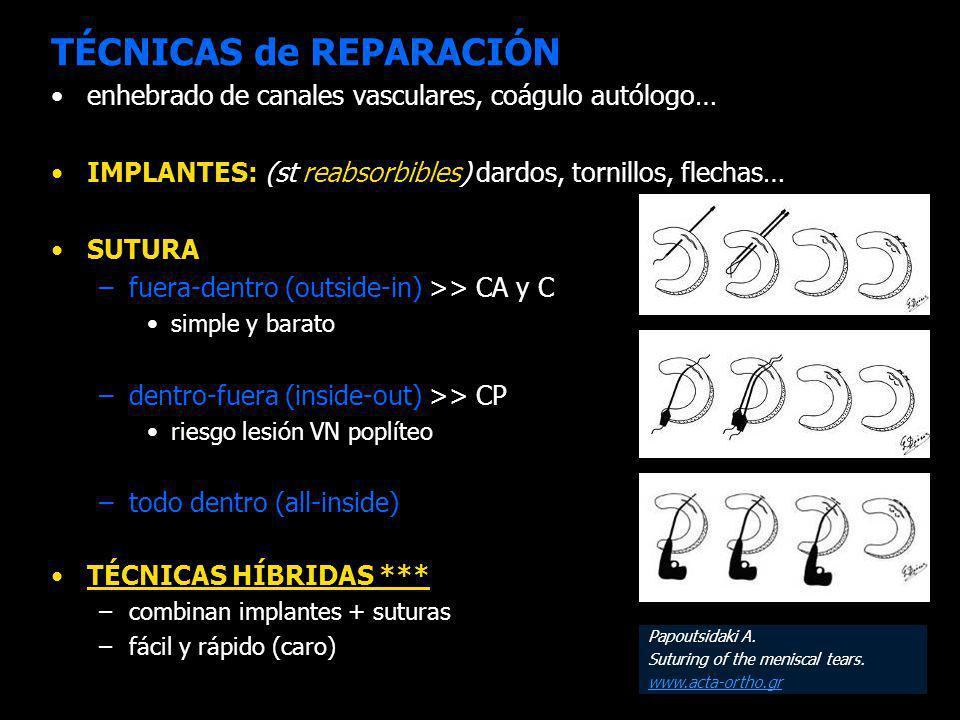TÉCNICAS de REPARACIÓN enhebrado de canales vasculares, coágulo autólogo… IMPLANTES: (st reabsorbibles) dardos, tornillos, flechas… SUTURA –fuera-dentro (outside-in) >> CA y C simple y barato –dentro-fuera (inside-out) >> CP riesgo lesión VN poplíteo –todo dentro (all-inside) TÉCNICAS HÍBRIDAS *** –combinan implantes + suturas –fácil y rápido (caro) Papoutsidaki A.