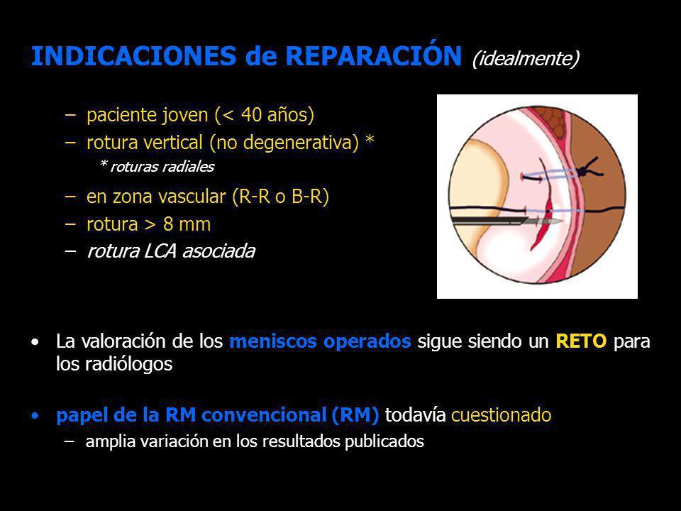 OBJETIVOS Valoración por imagen de los meniscos reparados es un RETO –RM convencional (RM) cuestionada Pocos estudios de imagen, valoración postoperatoria > clínica OBJETIVOS: 1.Evaluar y clasificar la apariencia postoperatoria de los meniscos suturados con RM convencional 2.Correlacionar los hallazgos con la exploración clínica 3.Centrarnos en las roturas amplias reparadas (asas de cubo y roturas longitudinales de 1/3- 2/3) OBJETIVOS ÍNDICE