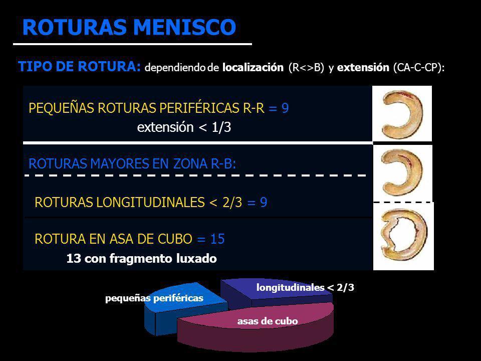 ROTURAS MENISCO TIPO DE ROTURA: dependiendo de localización (R<>B) y extensión (CA-C-CP): pequeñas periféricas asas de cubo longitudinales < 2/3 PEQUEÑAS ROTURAS PERIFÉRICAS R-R = 9 extensión < 1/3 ROTURAS MAYORES EN ZONA R-B: ROTURAS LONGITUDINALES < 2/3 = 9 ROTURA EN ASA DE CUBO = 15 13 con fragmento luxado