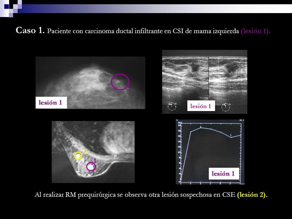Caso 1. Paciente con carcinoma ductal infiltrante en CSI de mama izquierda (lesión 1). Al realizar RM prequirúrgica se observa otra lesión sospechosa