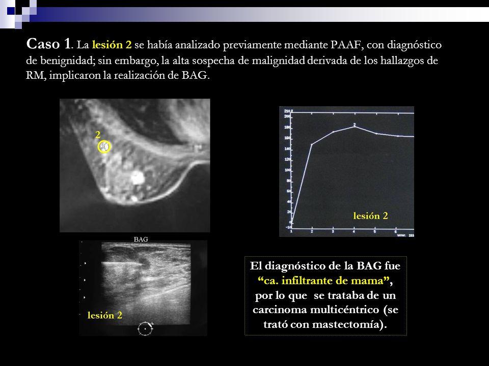 Caso 1. La lesión 2 se había analizado previamente mediante PAAF, con diagnóstico de benignidad; sin embargo, la alta sospecha de malignidad derivada