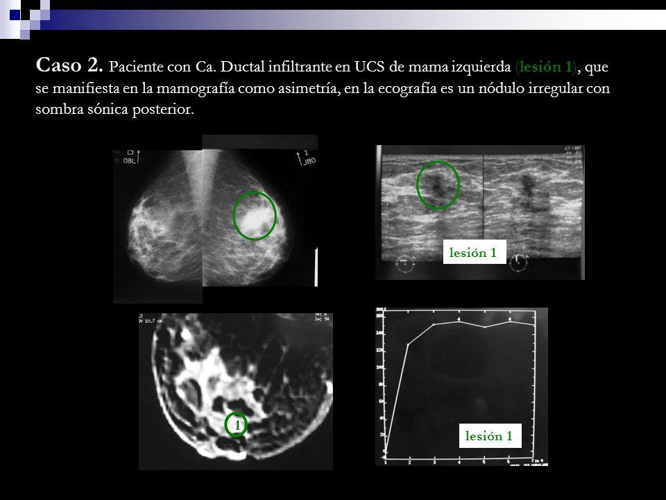 Caso 2. Paciente con Ca. Ductal infiltrante en UCS de mama izquierda (lesión 1), que se manifiesta en la mamografía como asimetría, en la ecografía es