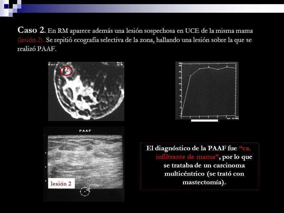 Caso 2. En RM aparece además una lesión sospechosa en UCE de la misma mama (lesión 2). Se repitió ecografía selectiva de la zona, hallando una lesión