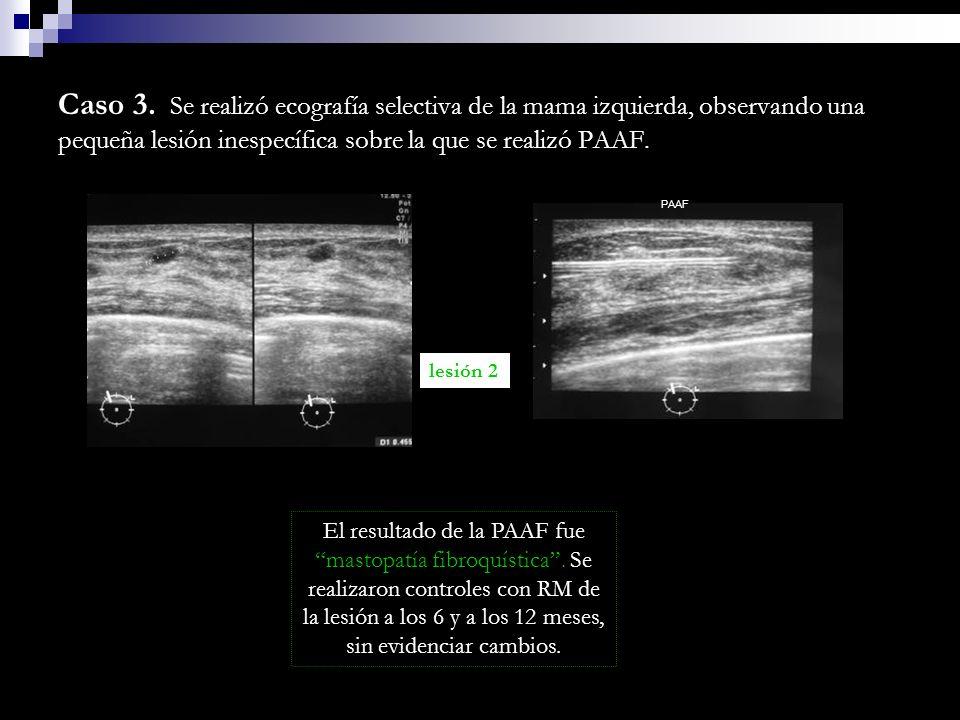 Caso 3. Se realizó ecografía selectiva de la mama izquierda, observando una pequeña lesión inespecífica sobre la que se realizó PAAF. lesión 2 PAAF El