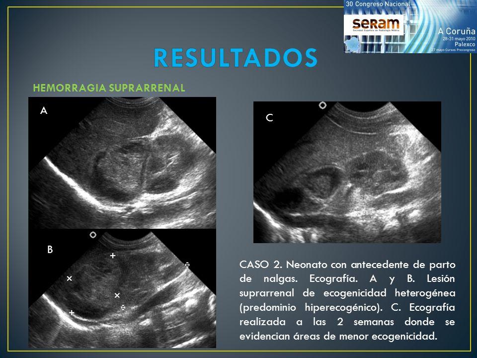 HEMORRAGIA SUPRARRENAL CASO 2. Neonato con antecedente de parto de nalgas. Ecografía. A y B. Lesión suprarrenal de ecogenicidad heterogénea (predomini