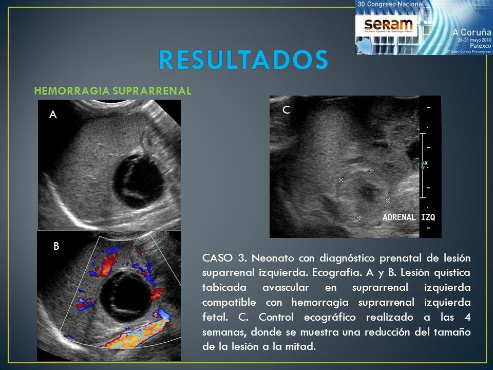 HEMORRAGIA SUPRARRENAL CASO 3. Neonato con diagnóstico prenatal de lesión suparrenal izquierda. Ecografía. A y B. Lesión quística tabicada avascular e