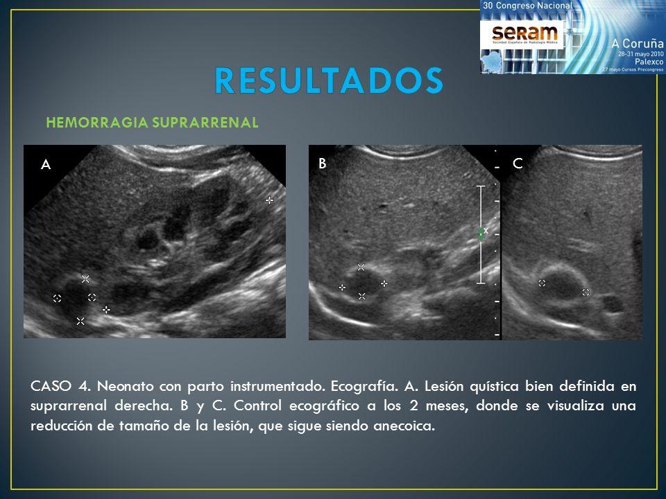 HEMORRAGIA SUPRARRENAL CASO 4. Neonato con parto instrumentado. Ecografía. A. Lesión quística bien definida en suprarrenal derecha. B y C. Control eco