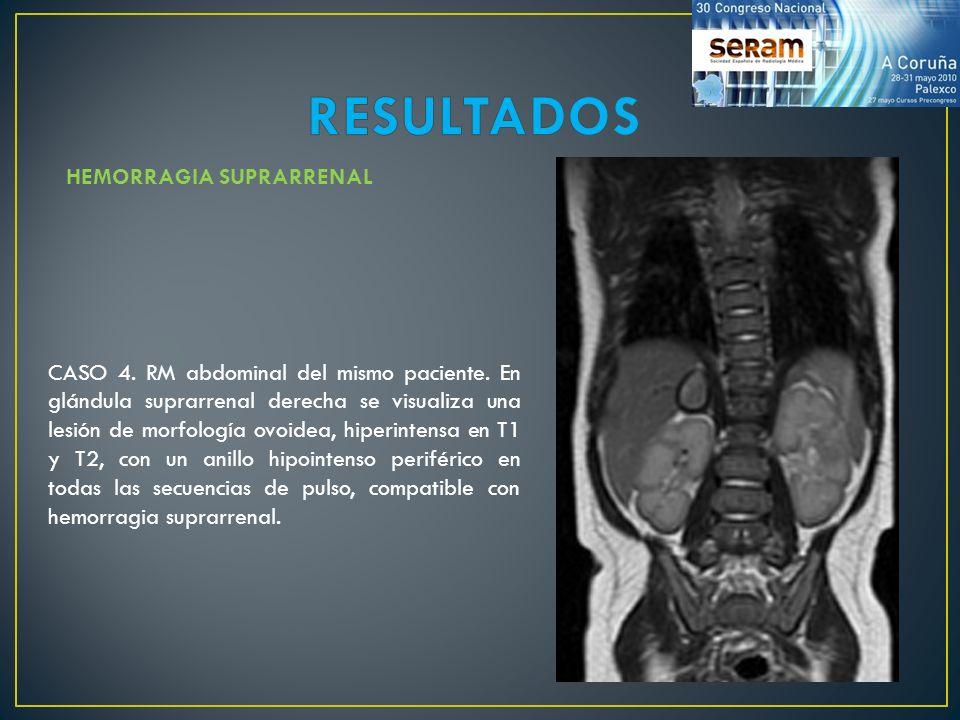 CASO 4. RM abdominal del mismo paciente. En glándula suprarrenal derecha se visualiza una lesión de morfología ovoidea, hiperintensa en T1 y T2, con u