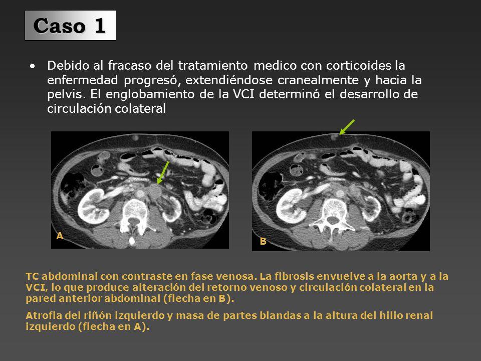 Paciente con molestias abdominales y anorexia.