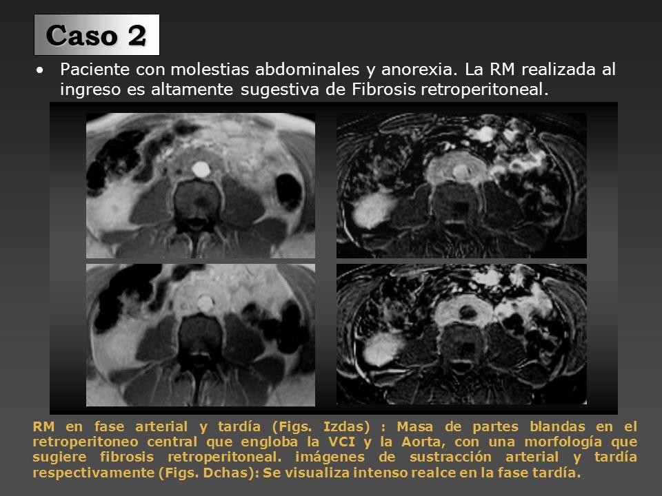 La fibrosis retroperitoneal periaórtica se extendía al uréter izquierdo.