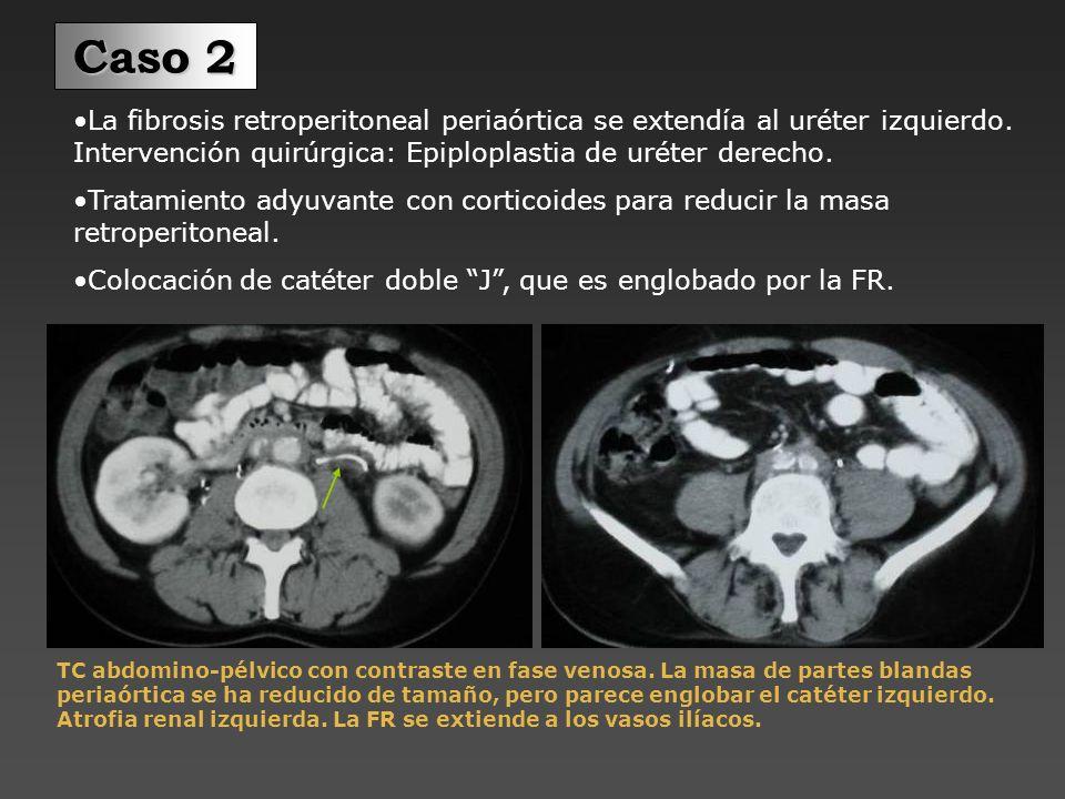 Paciente con aneurisma de la aorta abdominal que es diagnosticado de fibrosis perianeurismática.