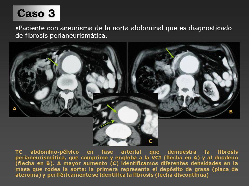 Paciente con aneurisma de la aorta abdominal, que presenta fibrosis perianeurismática.