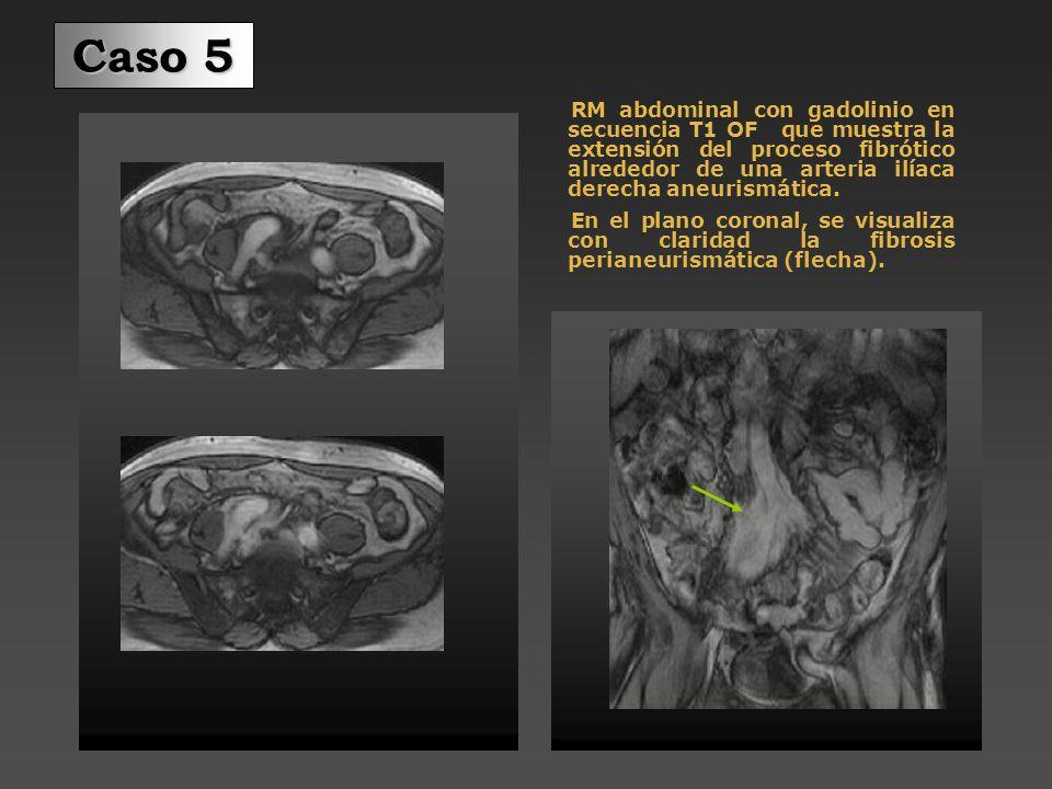 Caso 5 Urografía-RM: además de la dilatación del uréter derecho, se identifica hiperseñal en el trayecto del psoas derecho (flechas) Plano coronal: Se observa ureterohidronefrosis derecha y estenosis brusca a la altura de la hiperseñal en el trayecto del psoas Plano sagital: Llama la atención el desplazamiento anterior del uréter derecho traccionado por la masa fibrótica perianeurismática de la a.