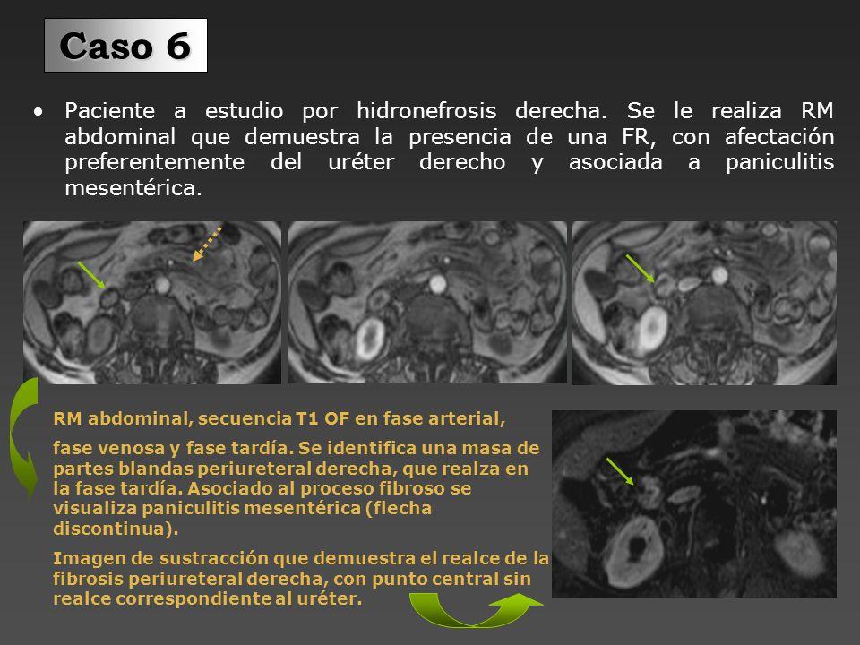 Se le realiza urografía mediante RM, para demostrar la hidronefrosis derecha.