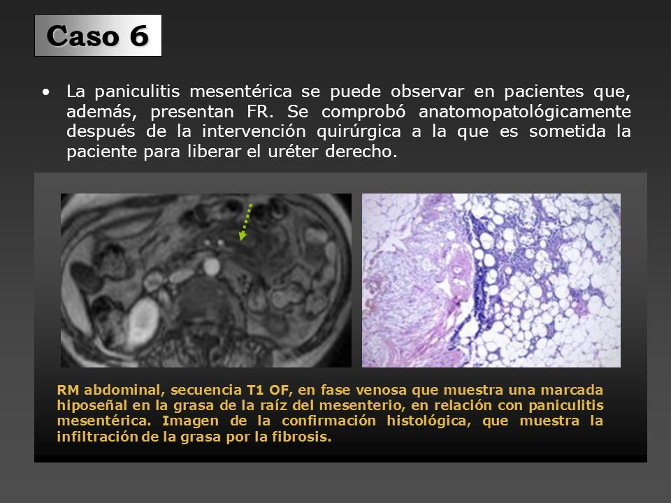 Urografía mediante RM: Se observa ureterohidronesis derecha.