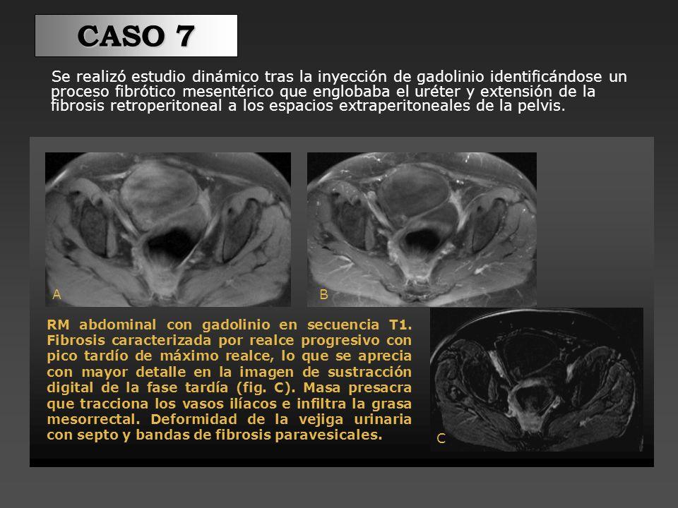 En un TC de control, se puede observar el proceso fibrótico mesentérico (flecha discontinua) y la extensión de la fibrosis retroperitoneal a los espacios extraperitoneales de la pelvis.