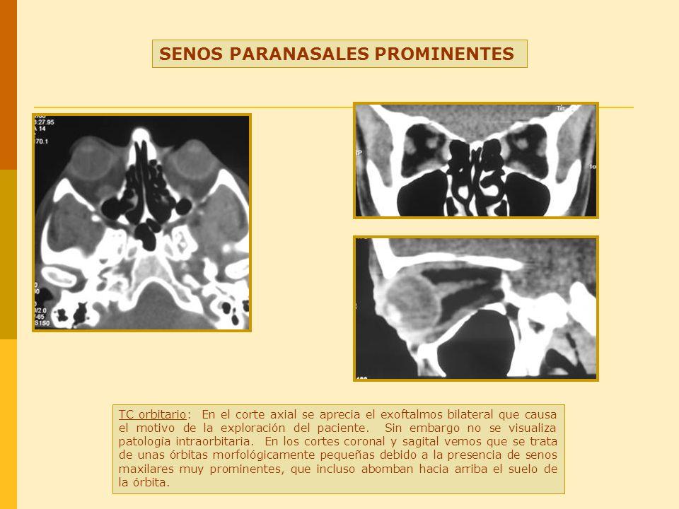 SENOS PARANASALES PROMINENTES TC orbitario: En el corte axial se aprecia el exoftalmos bilateral que causa el motivo de la exploración del paciente. S