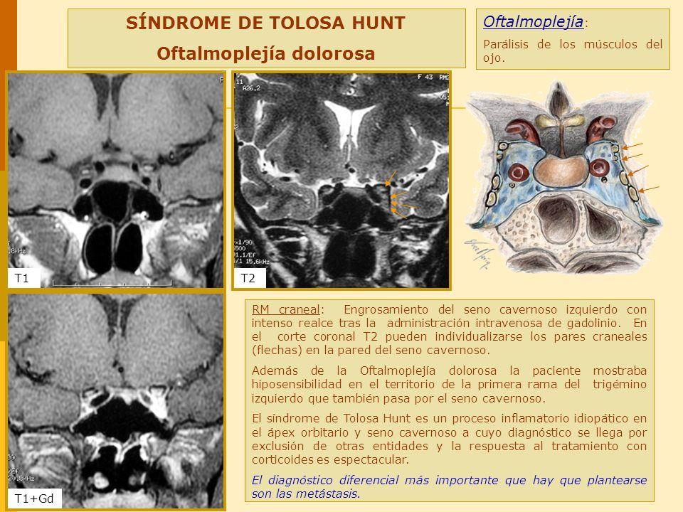 SÍNDROME DE TOLOSA HUNT Oftalmoplejía dolorosa RM craneal: Engrosamiento del seno cavernoso izquierdo con intenso realce tras la administración intrav