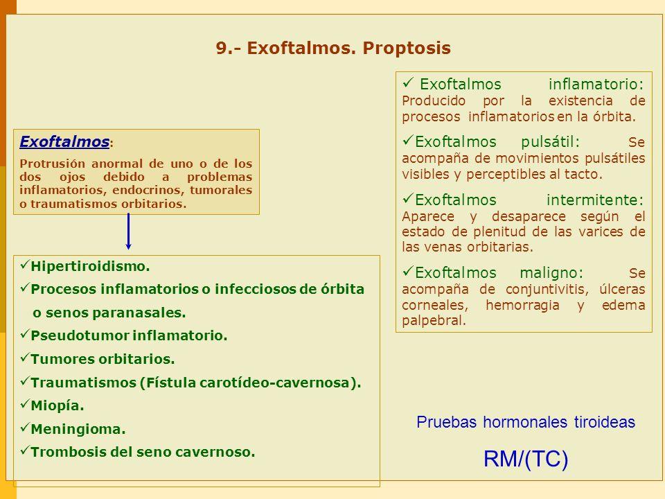 9.- Exoftalmos. Proptosis Exoftalmos : Protrusión anormal de uno o de los dos ojos debido a problemas inflamatorios, endocrinos, tumorales o traumatis