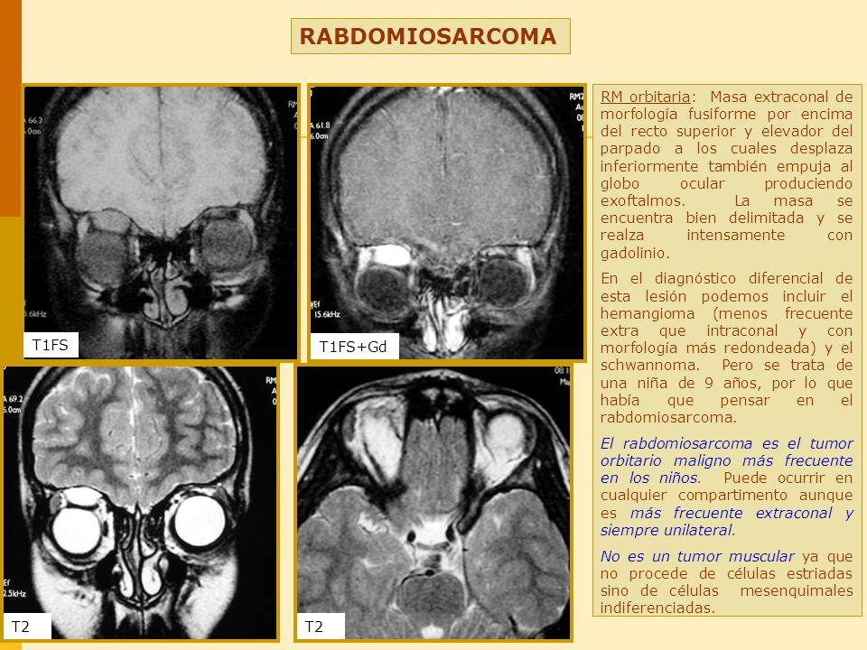 RABDOMIOSARCOMA RM orbitaria: Masa extraconal de morfología fusiforme por encima del recto superior y elevador del parpado a los cuales desplaza infer