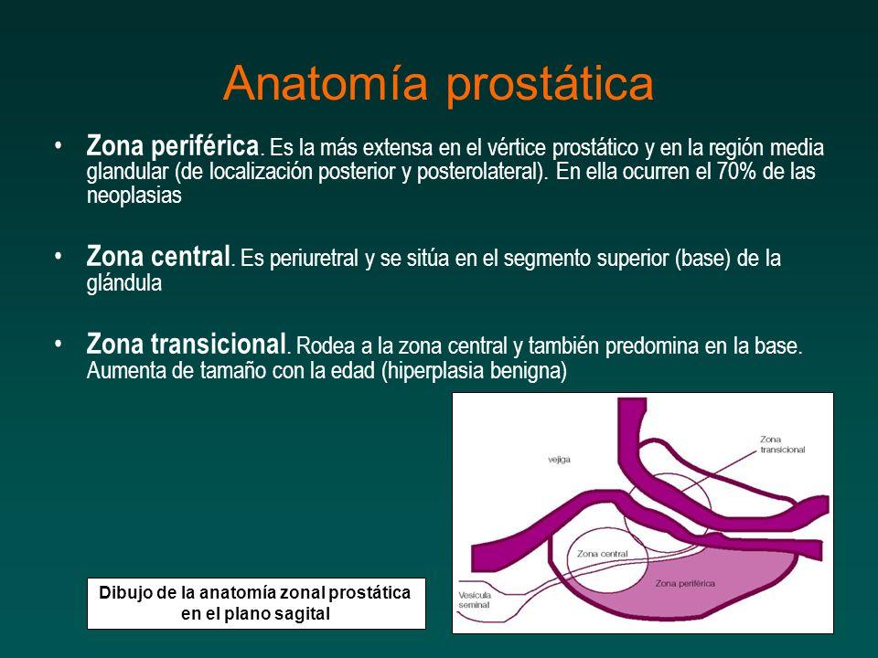 Zona periférica. Es la más extensa en el vértice prostático y en la región media glandular (de localización posterior y posterolateral). En ella ocurr