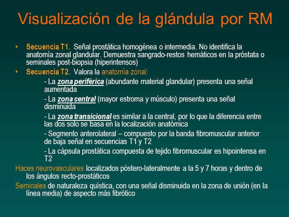 Visualización de la glándula por RM Secuencia T1. Señal prostática homogénea o intermedia. No identifica la anatomía zonal glandular. Demuestra sangra