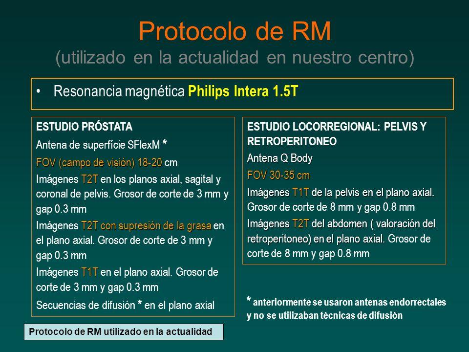 Protocolo de RM (utilizado en la actualidad en nuestro centro) Resonancia magnética Philips Intera 1.5T Protocolo de RM utilizado en la actualidad ESTUDIO PRÓSTATA Antena de superfície SFlexM * FOV (campo de visión) 18-20 FOV (campo de visión) 18-20 cm T2T Imágenes T2T en los planos axial, sagital y coronal de pelvis.