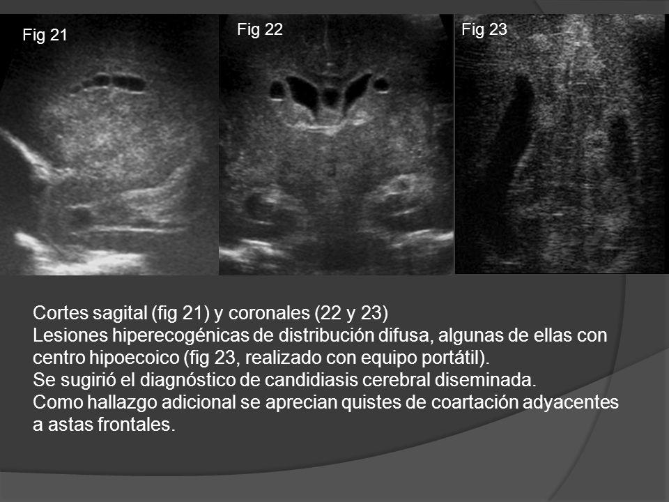 Cortes sagital (fig 21) y coronales (22 y 23) Lesiones hiperecogénicas de distribución difusa, algunas de ellas con centro hipoecoico (fig 23, realiza