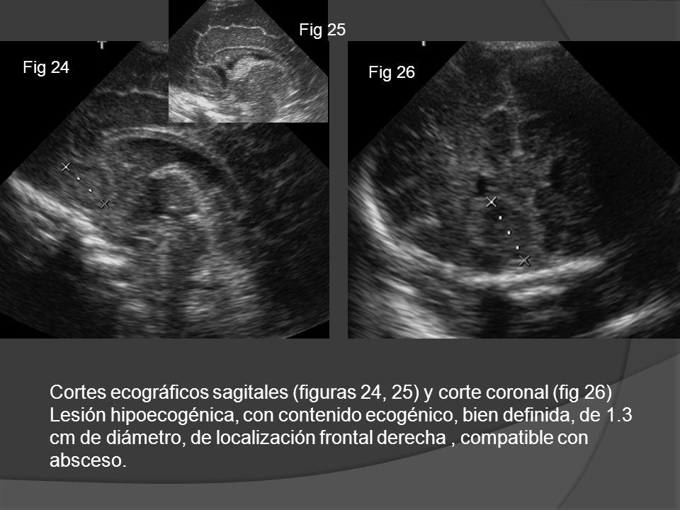 Cortes ecográficos sagitales (figuras 24, 25) y corte coronal (fig 26) Lesión hipoecogénica, con contenido ecogénico, bien definida, de 1.3 cm de diám