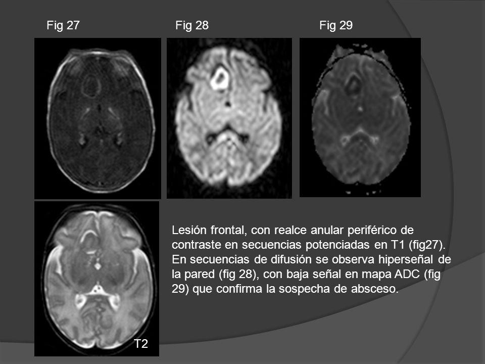Lesión frontal, con realce anular periférico de contraste en secuencias potenciadas en T1 (fig27). En secuencias de difusión se observa hiperseñal de