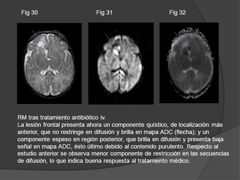 RM tras tratamiento antibiótico iv. La lesión frontal presenta ahora un componente quístico, de localización más anterior, que no restringe en difusió