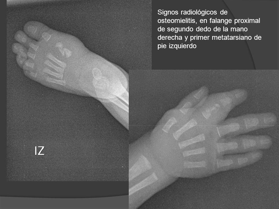Signos radiológicos de osteomielitis, en falange proximal de segundo dedo de la mano derecha y primer metatarsiano de pie izquierdo