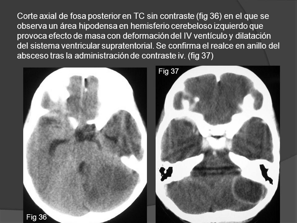 Corte axial de fosa posterior en TC sin contraste (fig 36) en el que se observa un área hipodensa en hemisferio cerebeloso izquierdo que provoca efect