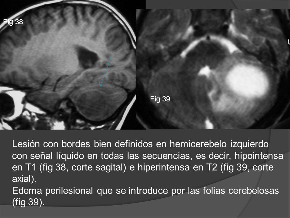Fig 38 Fig 39 Lesión con bordes bien definidos en hemicerebelo izquierdo con señal líquido en todas las secuencias, es decir, hipointensa en T1 (fig 3