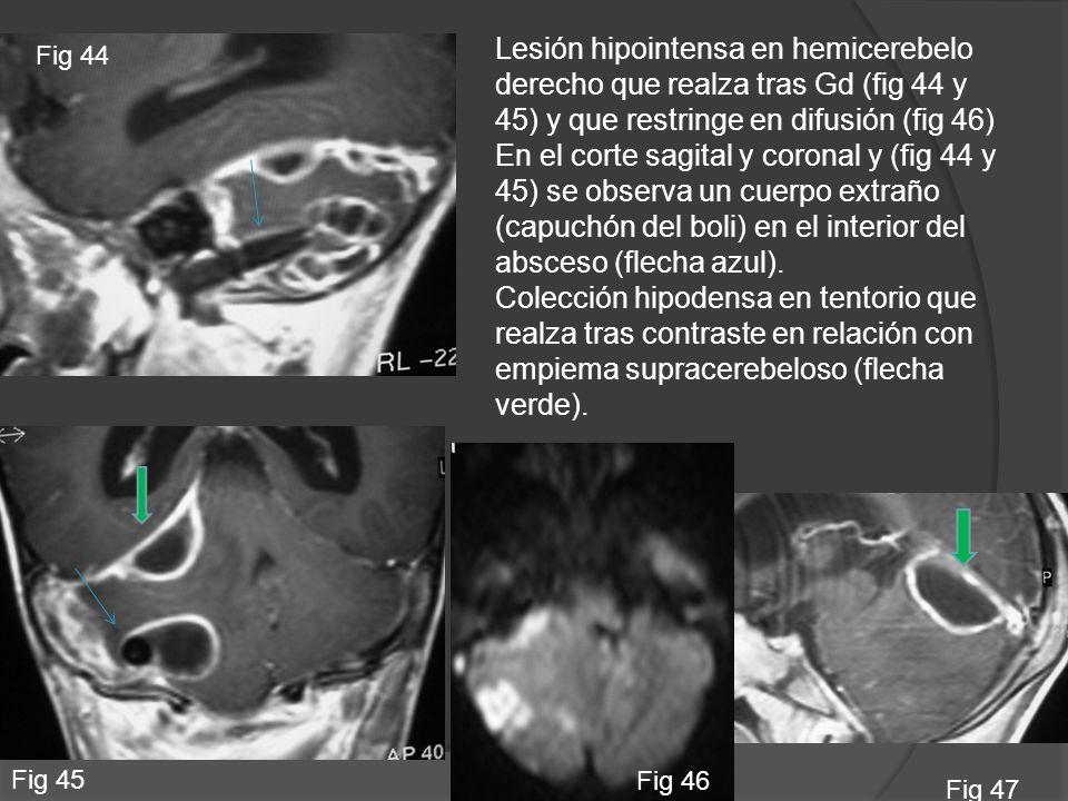Lesión hipointensa en hemicerebelo derecho que realza tras Gd (fig 44 y 45) y que restringe en difusión (fig 46) En el corte sagital y coronal y (fig