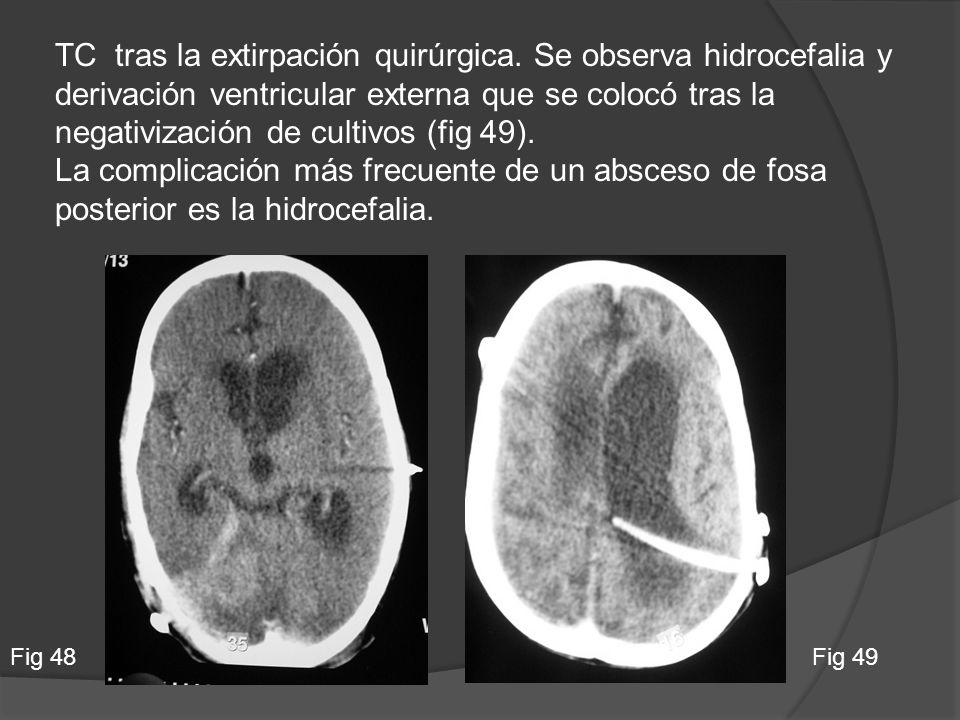TC tras la extirpación quirúrgica. Se observa hidrocefalia y derivación ventricular externa que se colocó tras la negativización de cultivos (fig 49).