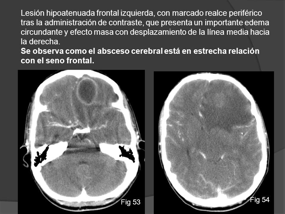 Lesión hipoatenuada frontal izquierda, con marcado realce periférico tras la administración de contraste, que presenta un importante edema circundante