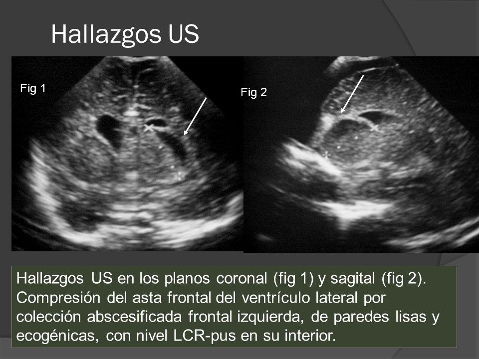 Hallazgos US Fig 1 Fig 2 Hallazgos US en los planos coronal (fig 1) y sagital (fig 2). Compresión del asta frontal del ventrículo lateral por colecció