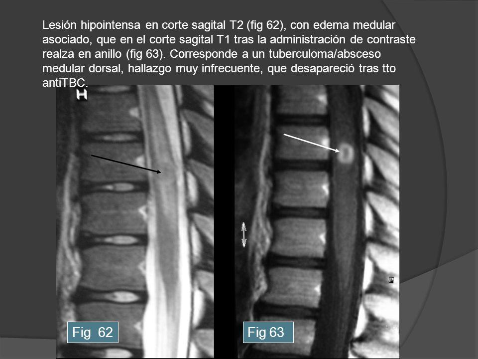 Fig 62Fig 63 Lesión hipointensa en corte sagital T2 (fig 62), con edema medular asociado, que en el corte sagital T1 tras la administración de contras
