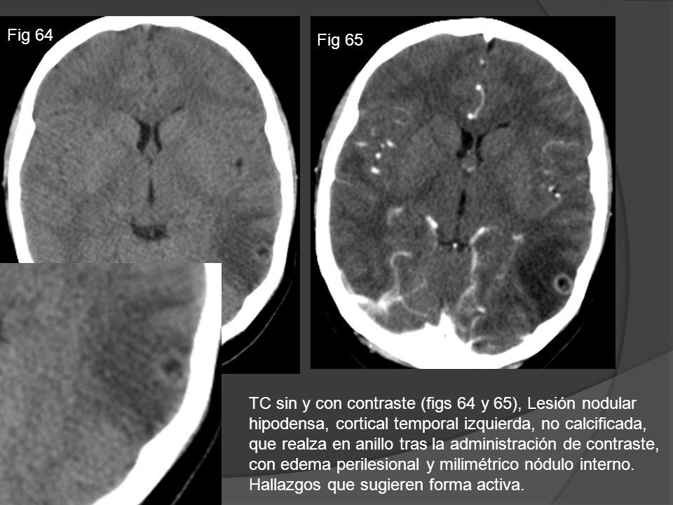 TC sin y con contraste (figs 64 y 65), Lesión nodular hipodensa, cortical temporal izquierda, no calcificada, que realza en anillo tras la administrac