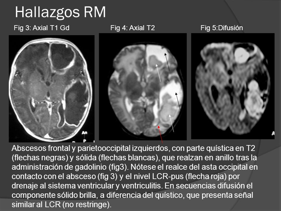 Hallazgos RM Fig 4: Axial T2Fig 3: Axial T1 GdFig 5:Difusión Abscesos frontal y parietooccipital izquierdos, con parte quística en T2 (flechas negras)