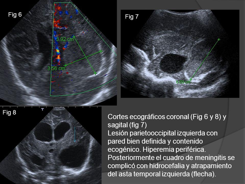 Cortes ecográficos coronal (Fig 6 y 8) y sagital (fig 7) Lesión parietooccipital izquierda con pared bien definida y contenido ecogénico. Hiperemia pe