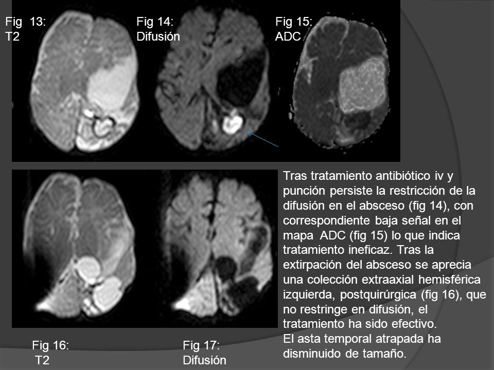 Tras tratamiento antibiótico iv y punción persiste la restricción de la difusión en el absceso (fig 14), con correspondiente baja señal en el mapa ADC