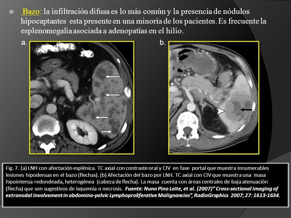 Fig. 7. (a) LNH con afectación esplénica. TC axial con contraste oral y CIV en fase portal que muestra innumerables lesiones hipodensas en el bazo (fl