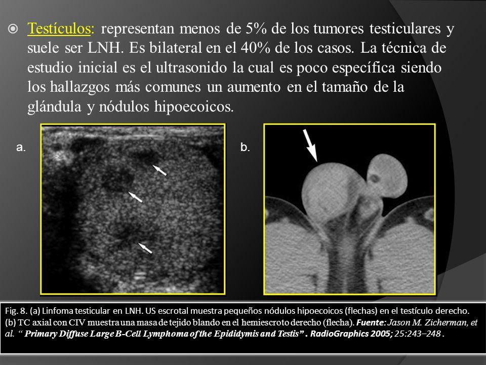 Testículos: representan menos de 5% de los tumores testiculares y suele ser LNH. Es bilateral en el 40% de los casos. La técnica de estudio inicial es