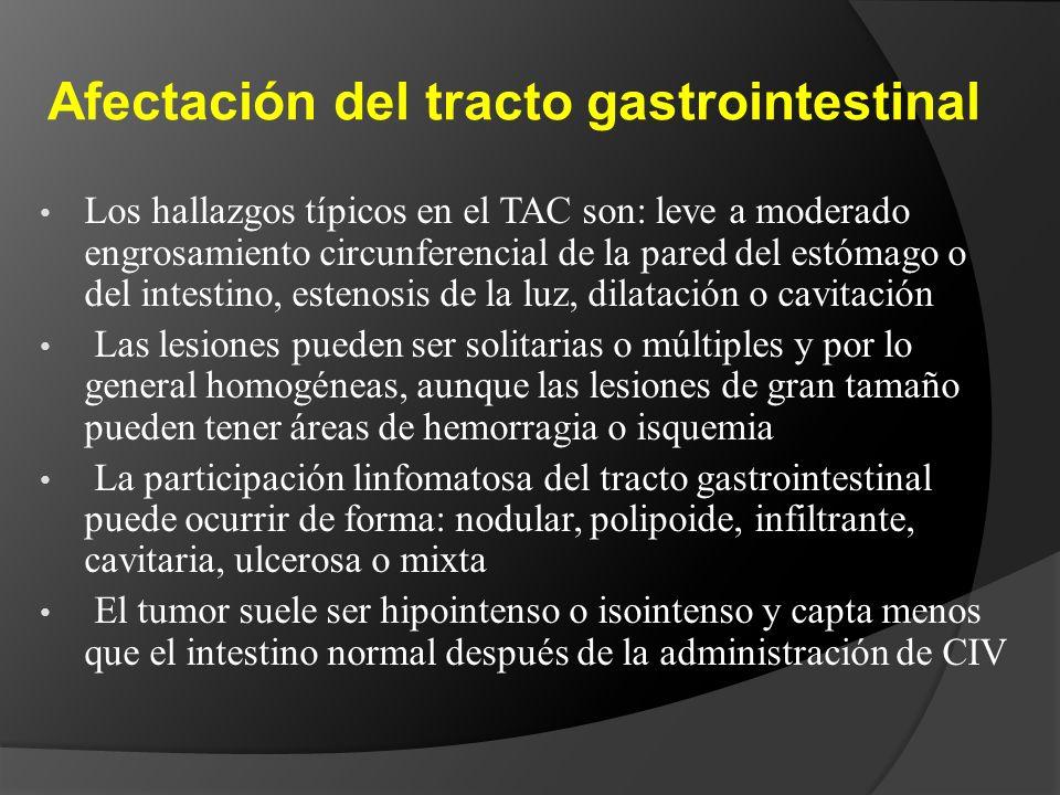 Afectación del tracto gastrointestinal Los hallazgos típicos en el TAC son: leve a moderado engrosamiento circunferencial de la pared del estómago o del intestino, estenosis de la luz, dilatación o cavitación Las lesiones pueden ser solitarias o múltiples y por lo general homogéneas, aunque las lesiones de gran tamaño pueden tener áreas de hemorragia o isquemia La participación linfomatosa del tracto gastrointestinal puede ocurrir de forma: nodular, polipoide, infiltrante, cavitaria, ulcerosa o mixta El tumor suele ser hipointenso o isointenso y capta menos que el intestino normal después de la administración de CIV